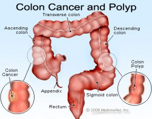 Colon cancer n polyp_MedincineNet