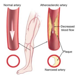 PAD_leg artery_by CDC