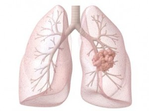 Lung Cancer_lungcancer.about.com_iStock_000016025129_Large